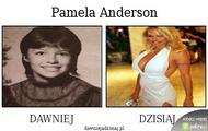Pamela anderson dawniej dzisiaj - lee