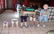 Protezy nóg z 10-ciu lat